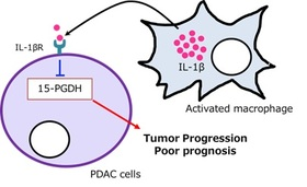 Downregulation of 15-hydroxyprostaglandin dehydrogenase by interleukin-1β from activated macrophages leads to poor prognosis in pancreatic cancer.